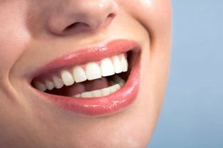 brighten-your-smile-with-teeth-whitening