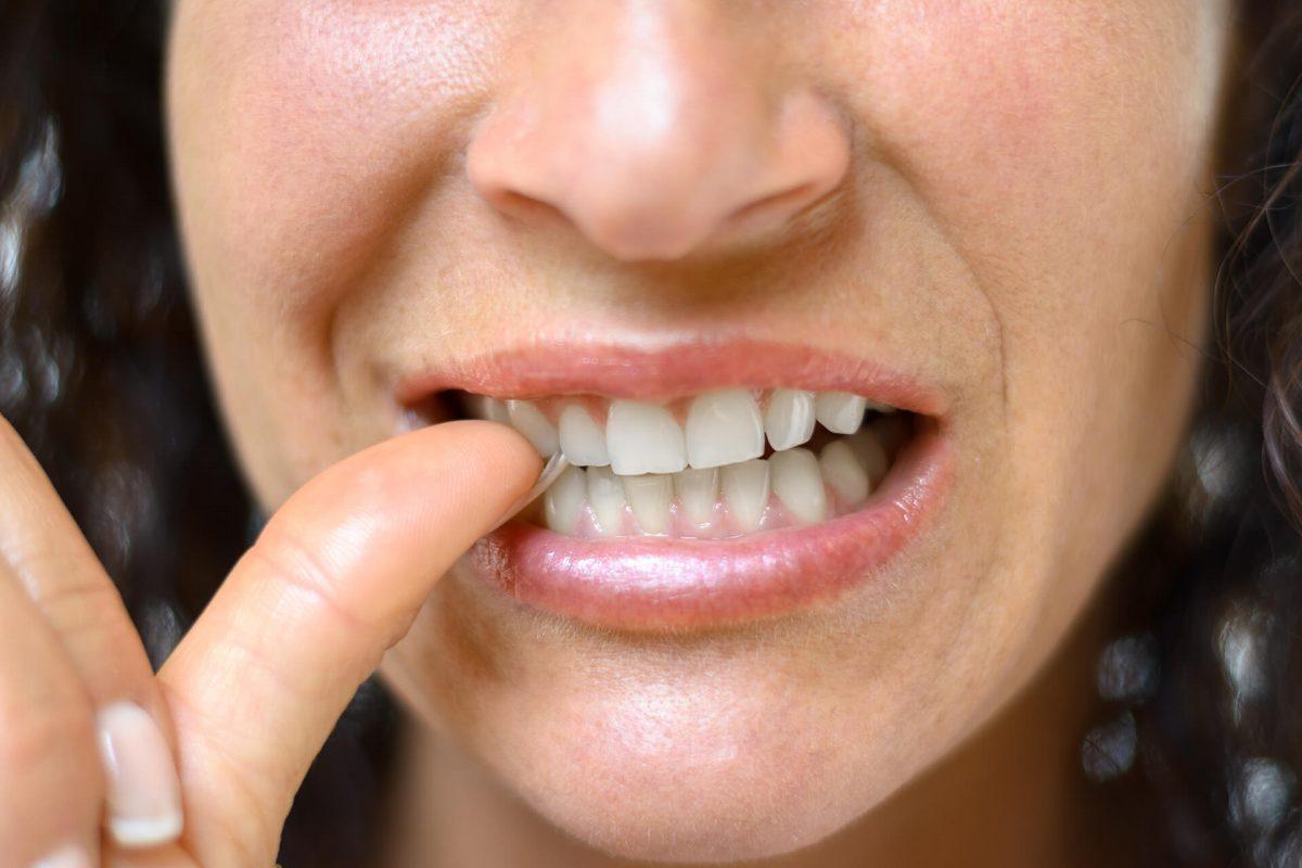 dental-habits-you-need-to-break