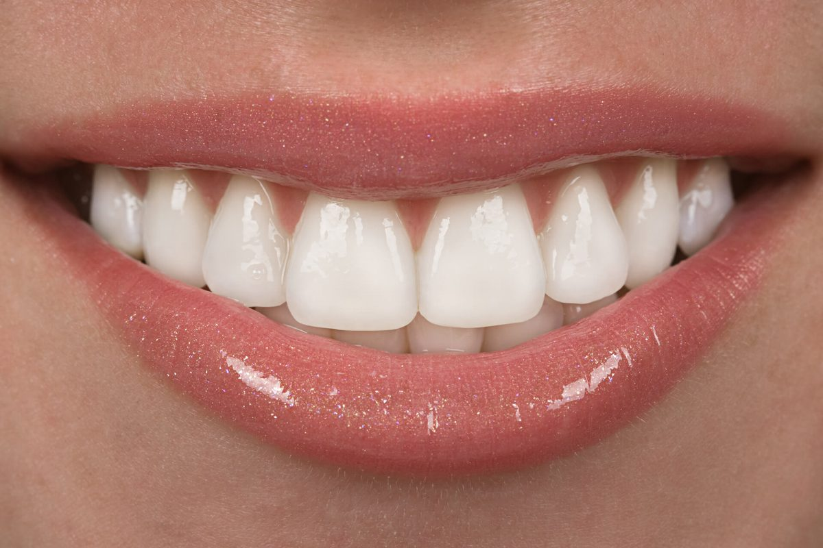 achieve-the-perfect-smile-with-dental-veneers