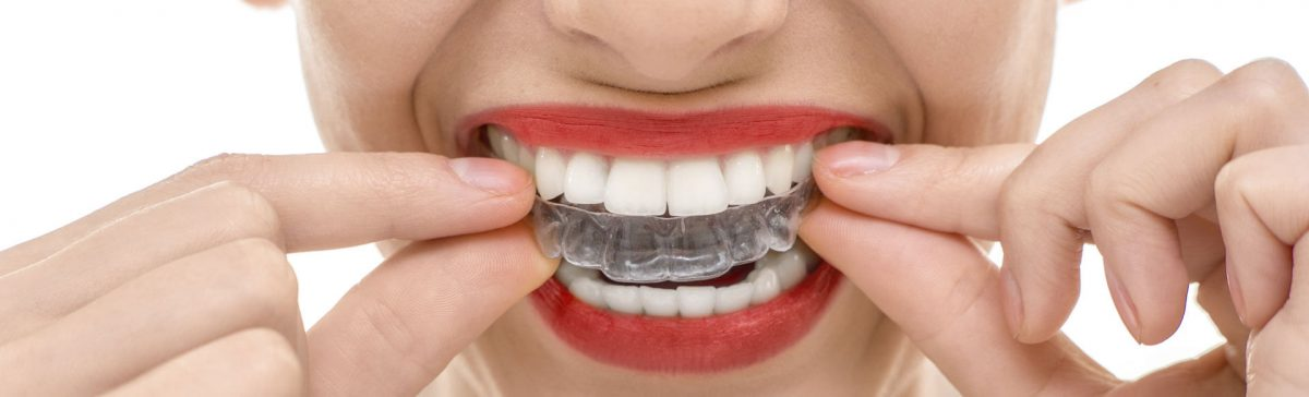 What Are The Pros and Cons Of Clear Braces