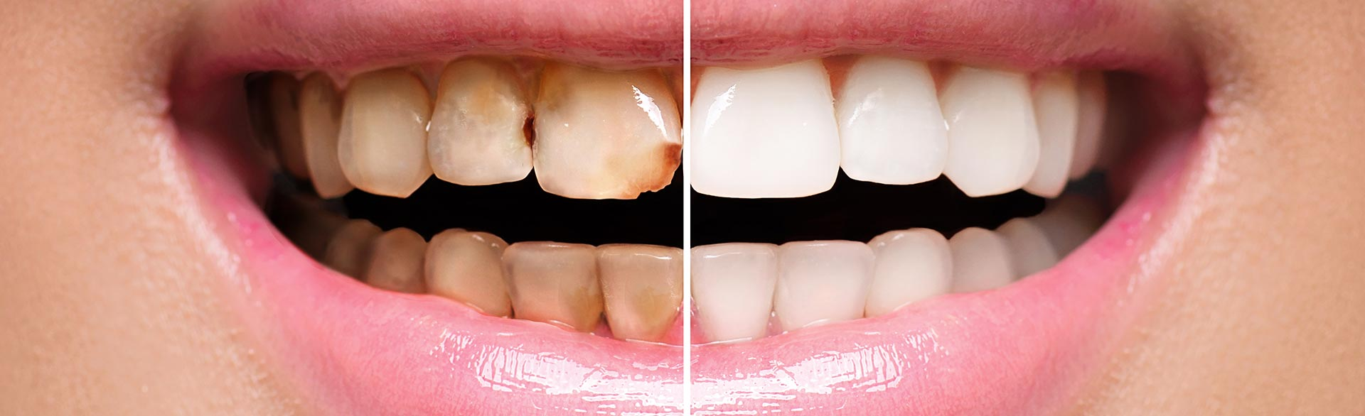 Restore your Dental Health and Appearance with a Complete Smile Makeover