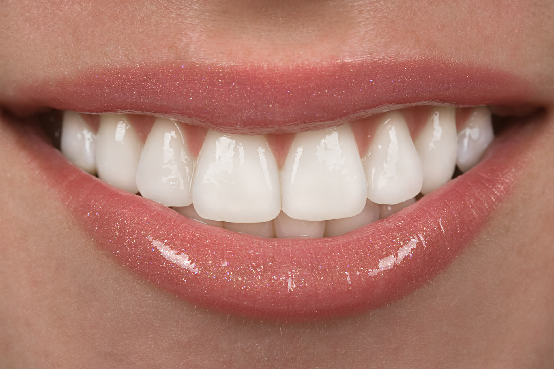 Achieve the Perfect Smile with Dental Veneers