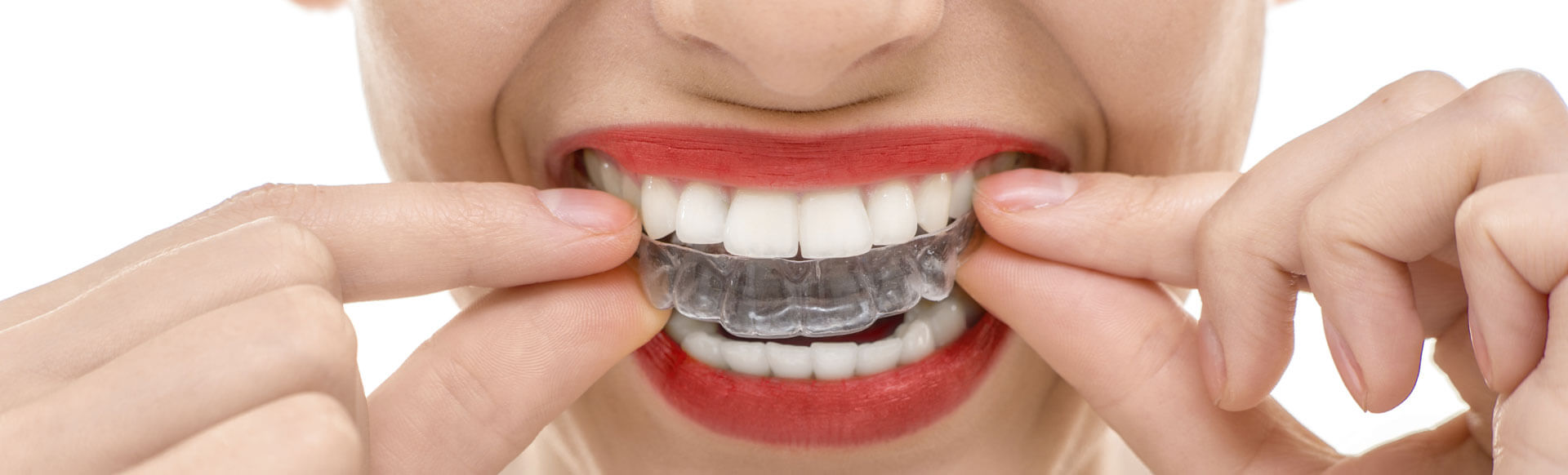 The Pros and Cons of Clear Braces
